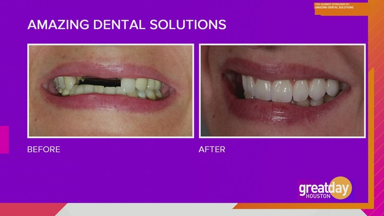 Amazing Dental Solutions provides full mouth makeovers