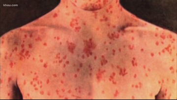 Another measles case confirmed in Harris County