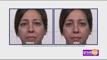 Plexaderm eliminates under eye bags and age lines in just minutes!