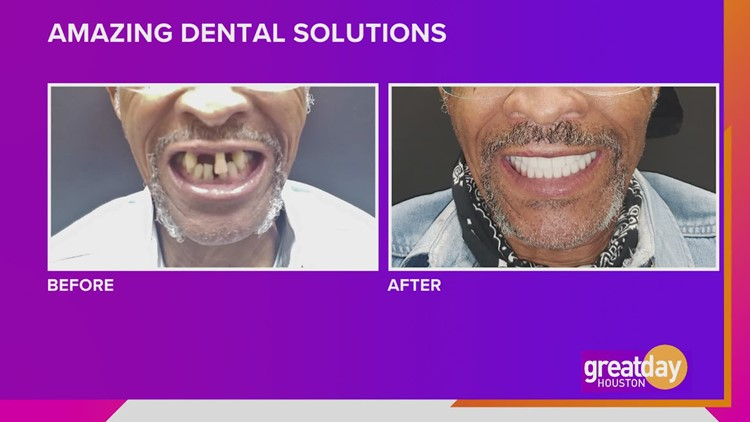 The best in full mouth makeovers at Amazing Dental Solutions