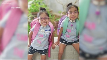 Formerly conjoined twins start Pre-K