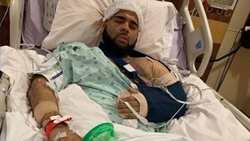 'He was just trying to help' | Good Samaritans critically injured by suspected drunk driver