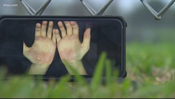 Coach on leave after exercise causes blisters on students' hands