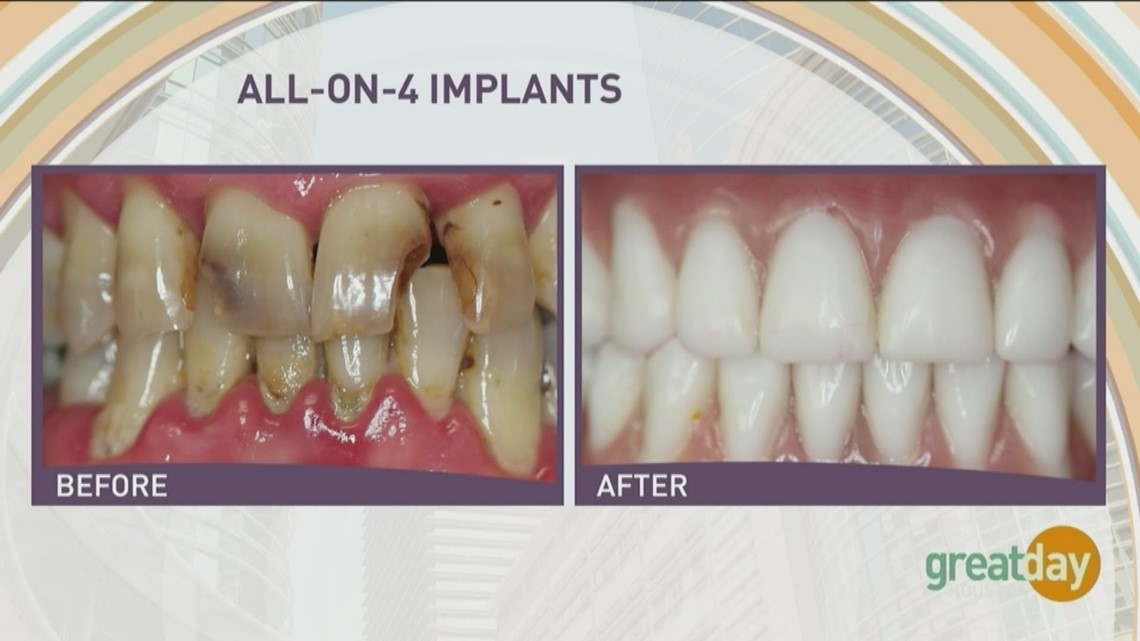 Dr Raouf Hanna With Hanna Dental Implant Center Offers