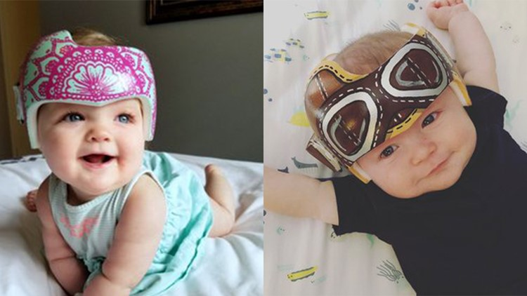 Spring mom paints cranial helmets for babies for free