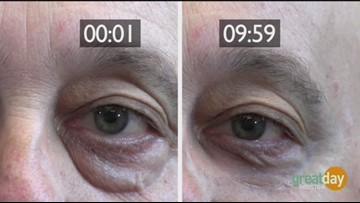 Take years off your face in just minutes with Plexaderm