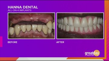 Dr. Raouf Hanna showcases another Hanna Dental Implant Center success story