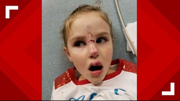 7-year-old Georgetown girl survives dog attack