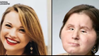 Face transplant recipient at Cleveland Clinic receives second chance after suicide attempt