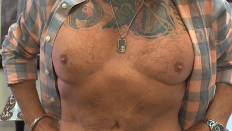 More men turning to plastic surgery, losing 'dad bod'